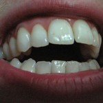 Kuvan hampaat eivät liity tapaukseen. teeth via photopin (license)